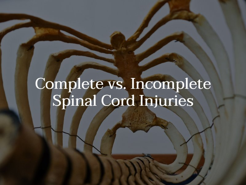 Complete vs. Incomplete Spinal Cord Injury